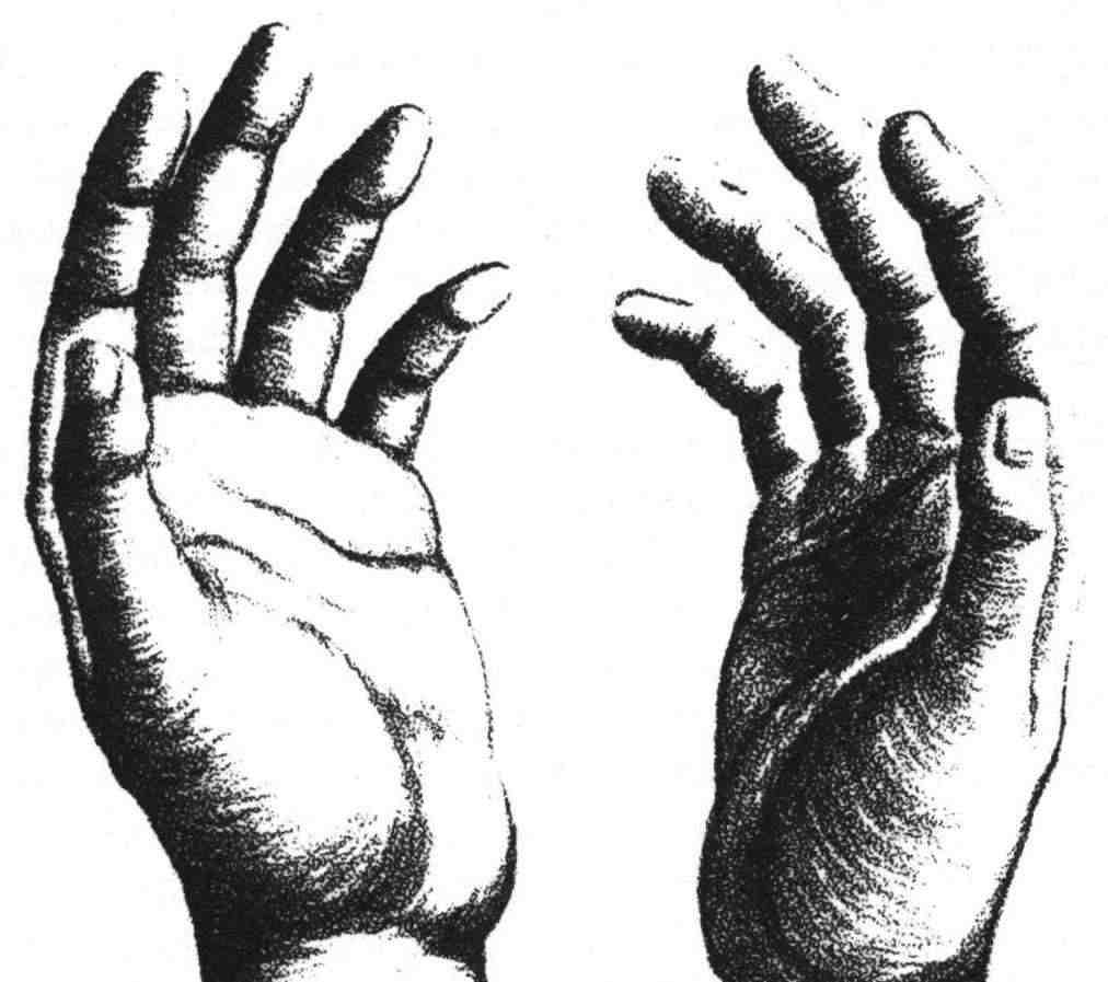 Chiromancie la forme des mains