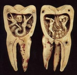 dents-qui-tombent-300x294